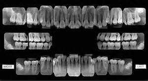 A full mouth series. Shows an up close view of the roots of the teeth and the biting surfaces.