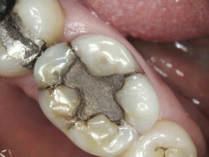 This amalgam filling is in the occlusal part of the tooth.